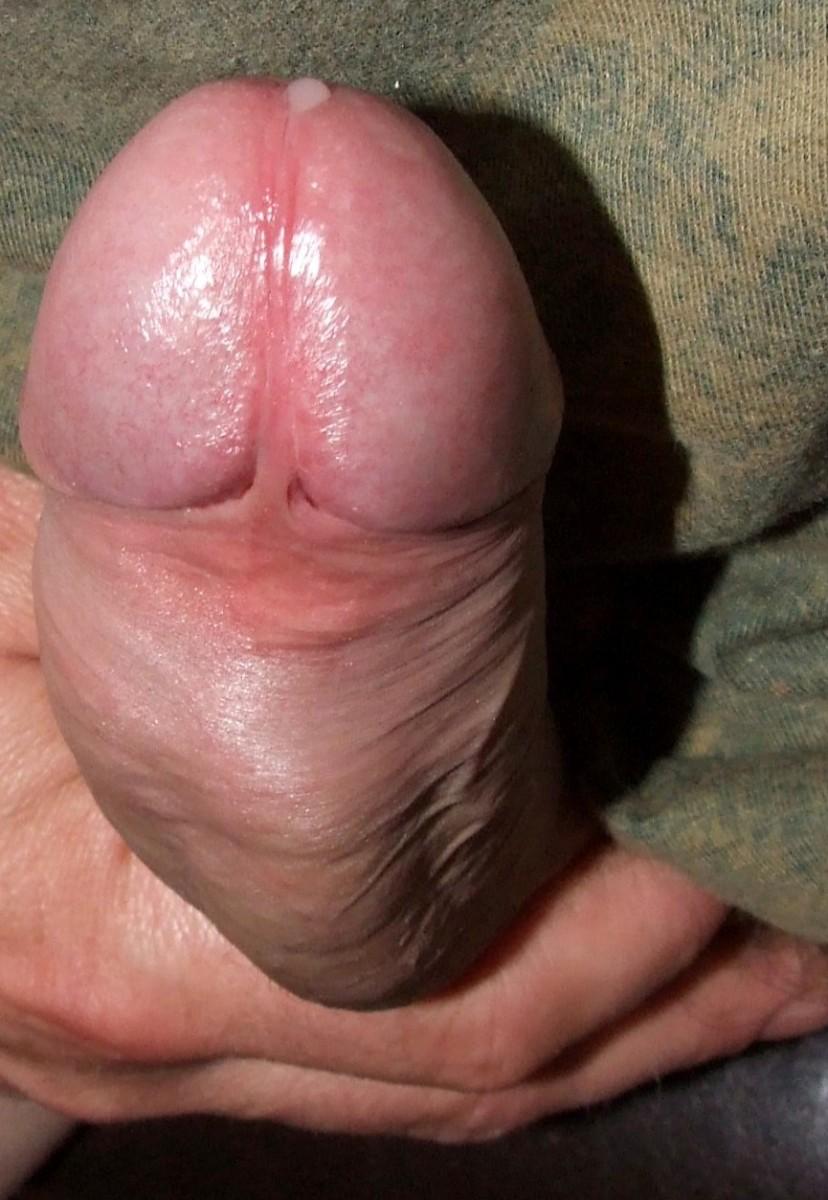 Small penis survey