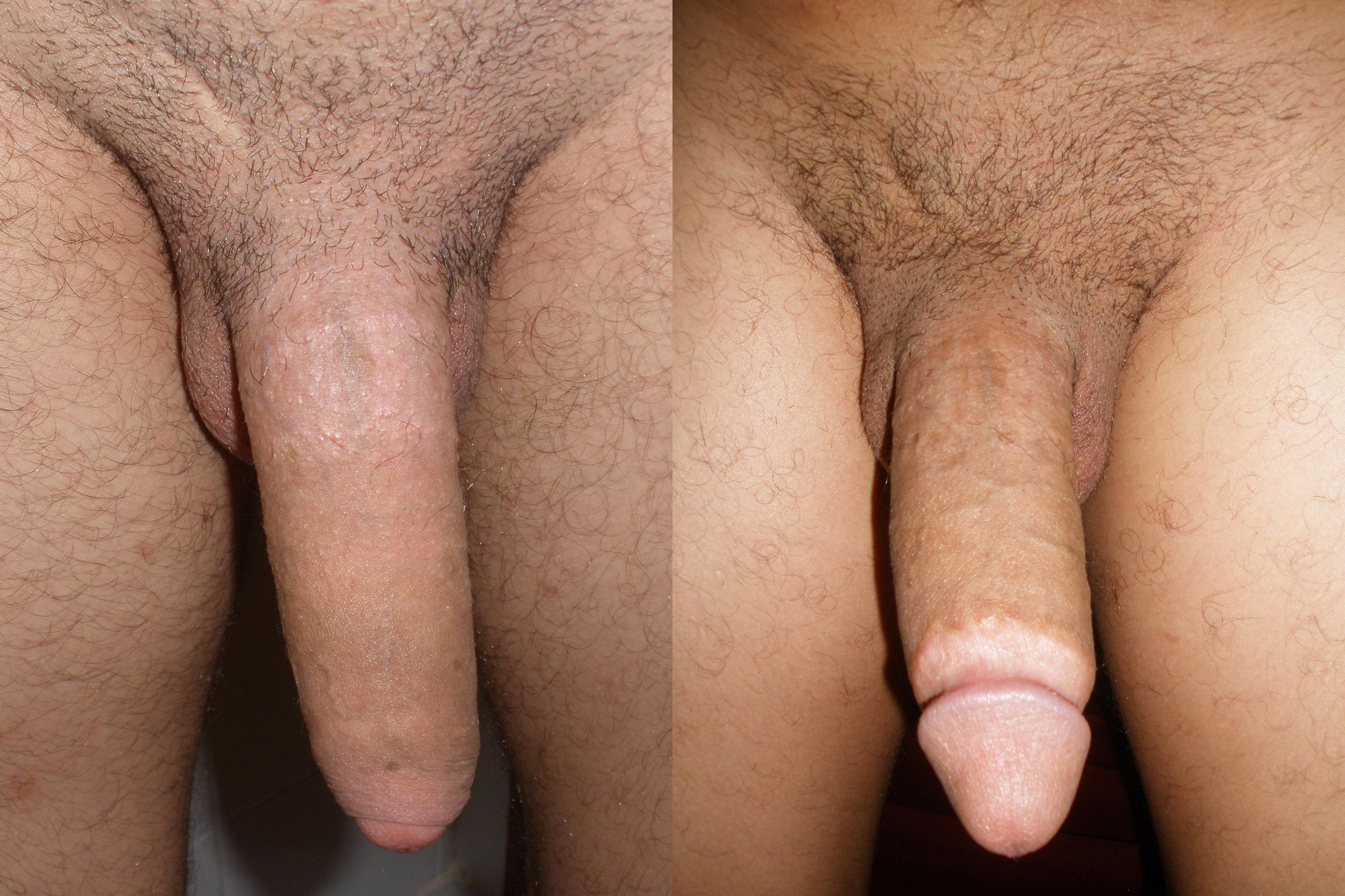 Cirumcised cocks photos commit error